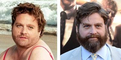 Zach-Galifianakis-Beard-No-Beard