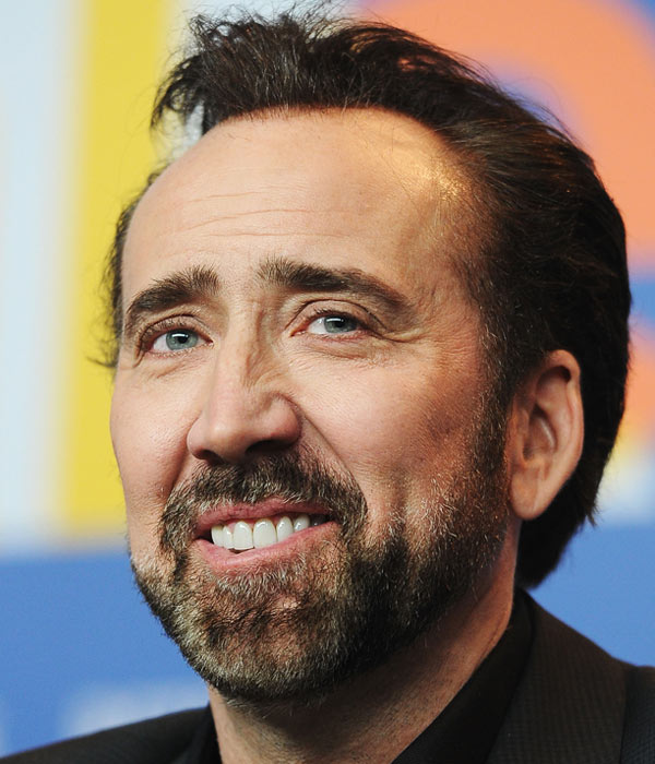 Nicolas-Cage-Receding-Hairline-Widows-Peak