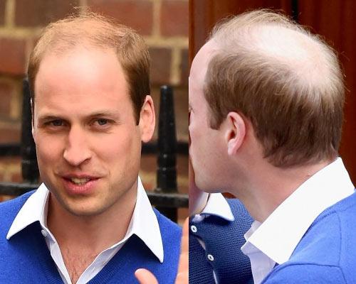 Marvelous Hairstyles For Thinning Hair Men Short Hairstyles For Black Women Fulllsitofus